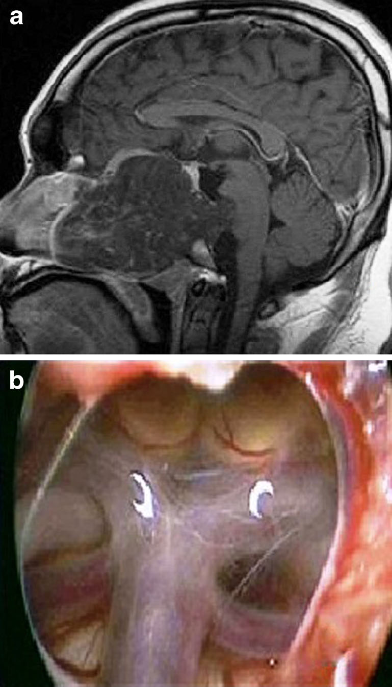 Endoscopic Endonasal Approach In The Management Of Skull Base