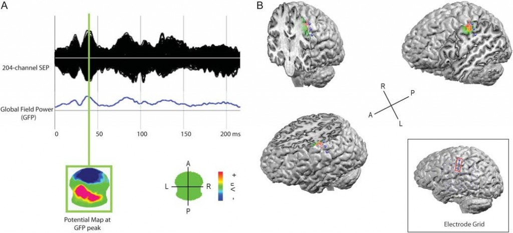 Surgically Relevant Localization of the Central Sulcus With High-Density Somatosensory-Evoked Potentials Compared With Functional Magnetic Resonance Imaging