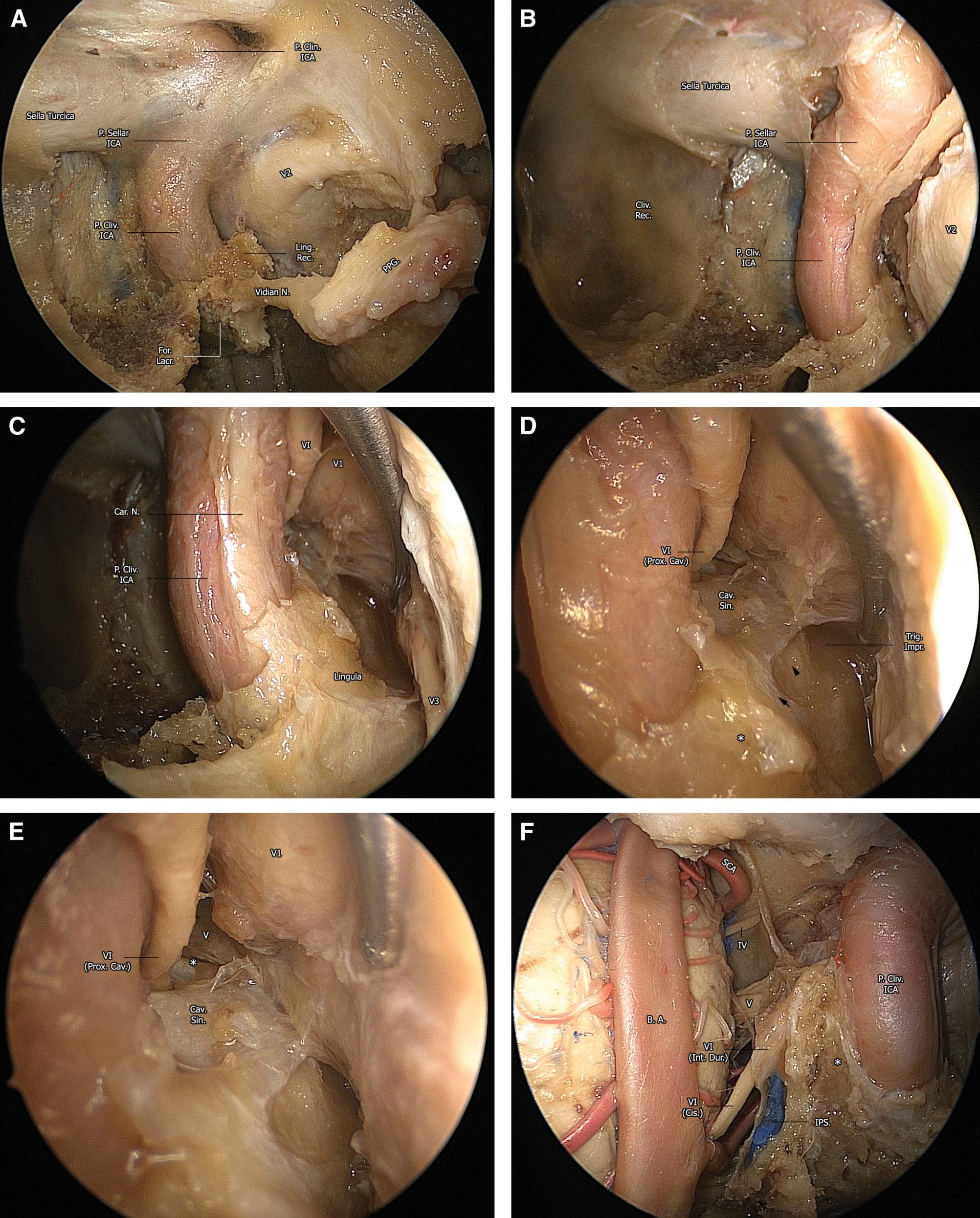 A Road Map to the Internal Carotid Artery in Expanded Endoscopic ...