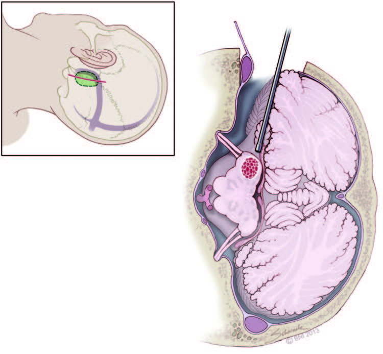 Lateral inferior cerebellar peduncle approach to dorsolateral ...