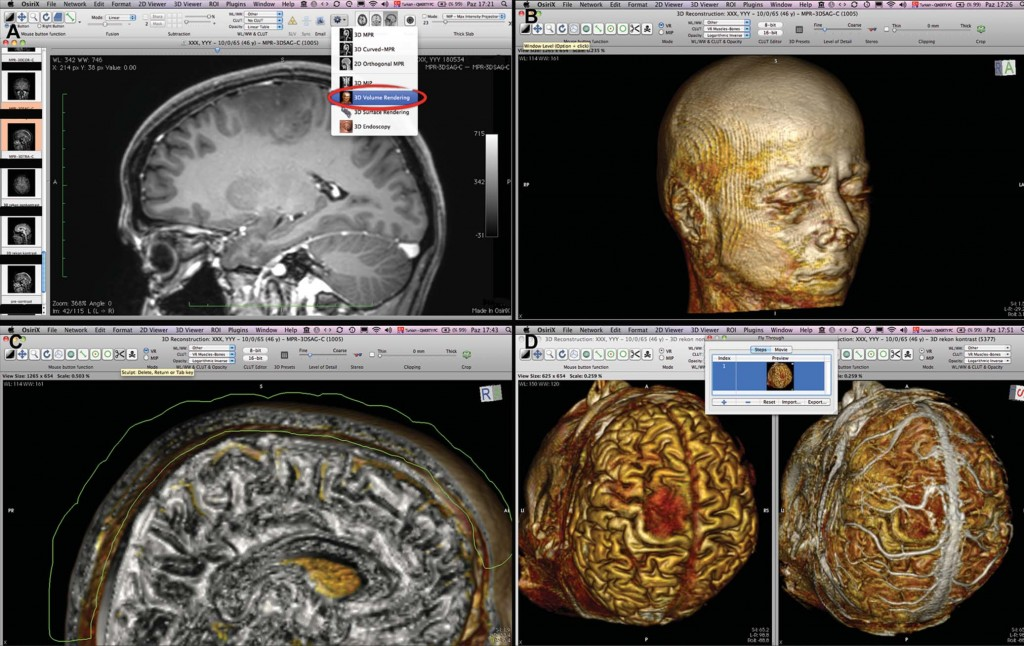 Three-Dimensional Reconstruction of the Topographical Cerebral Surface Anatomy for Presurgical Planning With Free OsiriX Software
