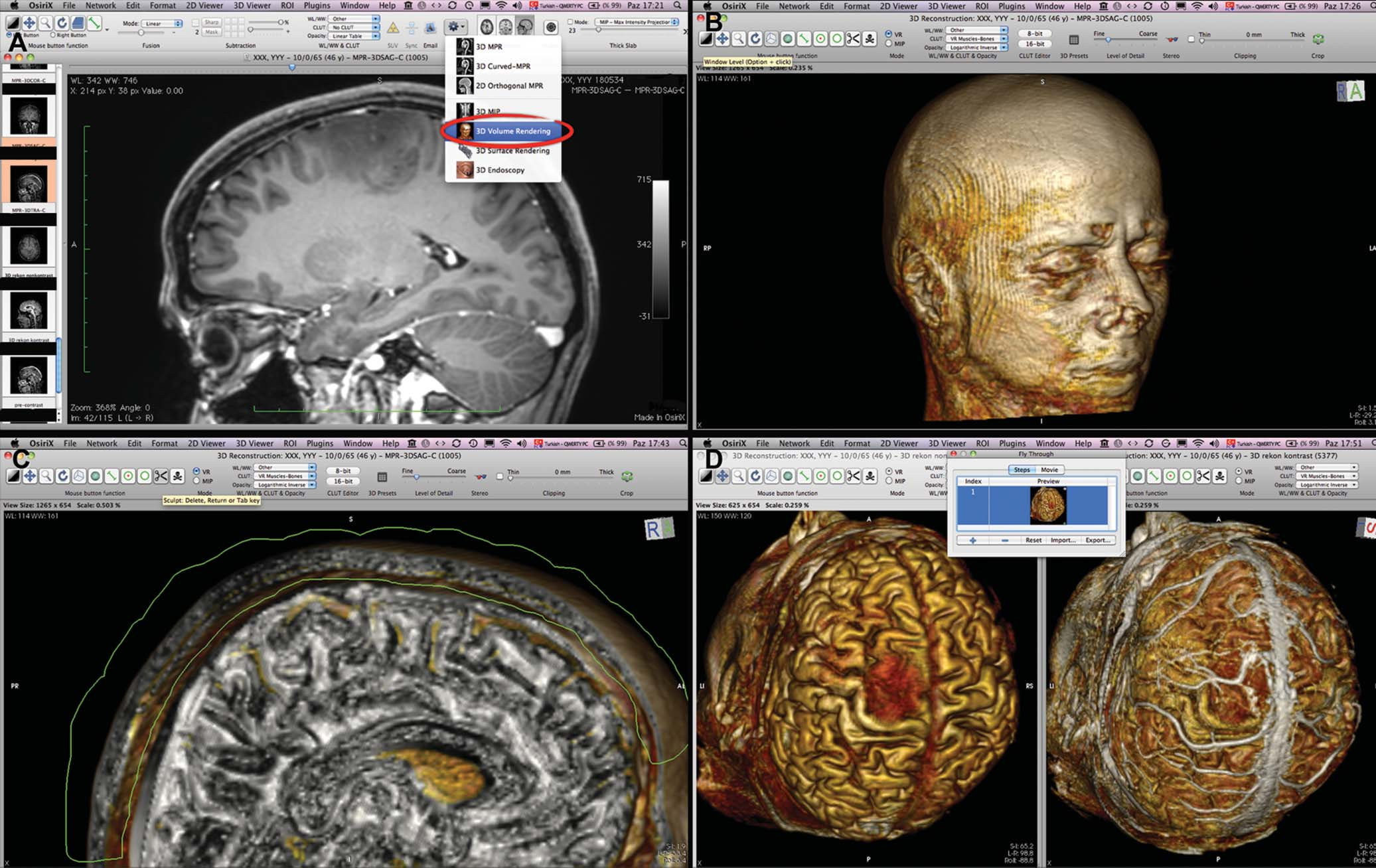 Three-Dimensional Reconstruction of the Topographical Cerebral ...