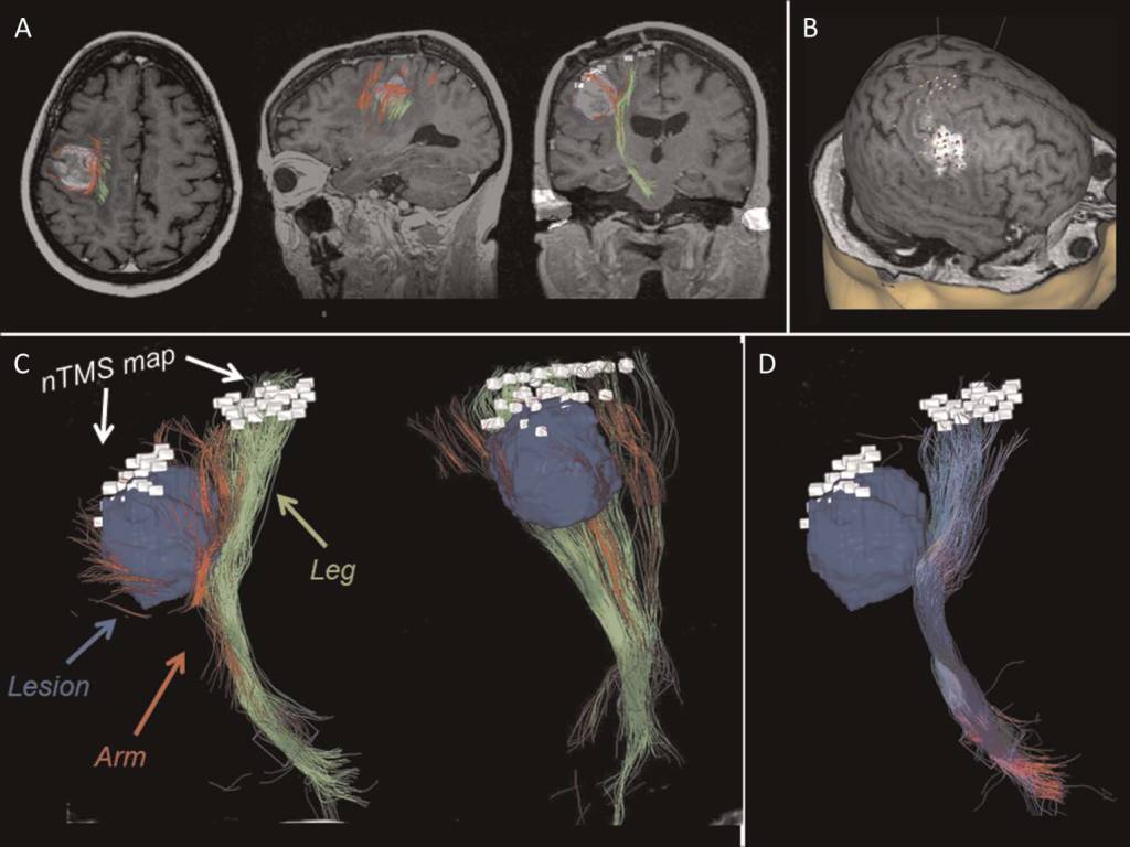 SOMATOTOPIC RECONSTRUCTION OF CORTICOSPINAL TRACT