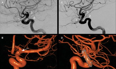 Incidence and Clinical Implications of Carotid Branch Occlusion Following Treatment of Internal Carotid Artery Aneurysms With the Pipeline Embolization Device
