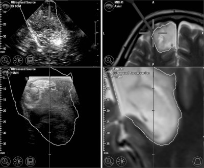 Linear array ultrasound in low-grade glioma surgery