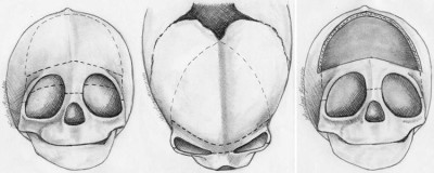 The cranial orbital buttress technique for nonsyndromic unicoronal and metopic craniosynostosis