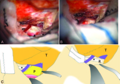 Subtemporal transtentorial approach for recurrent trigeminal neuralgia after microvascular decompression via the lateral suboccipital approach