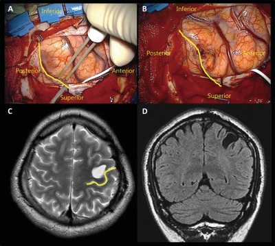 Topographical Risk Factor Analysis of New Neurological Deficits Following Precentral Gyrus Resection