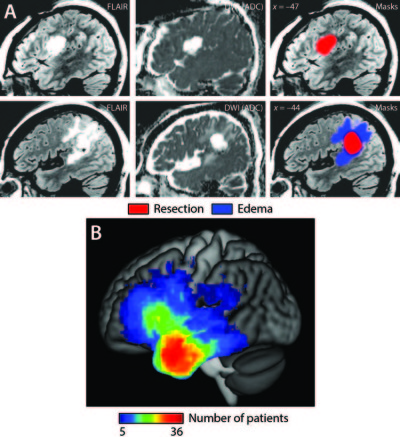 Transient aphasias after left hemisphere resective surgery