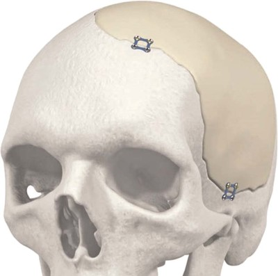 The Recent Revolution in the Design and Manufacture of Cranial Implants