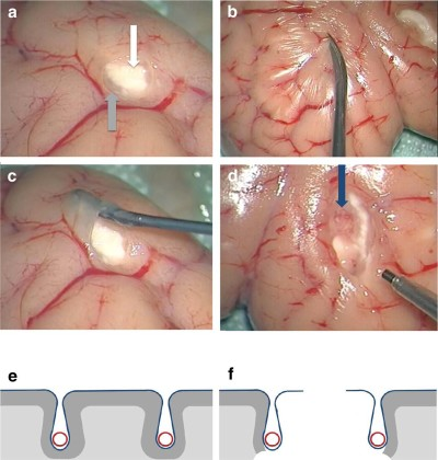 Training for brain tumour resection- a realistic model with easy accessibility