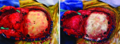 Reducing surgical site infections following craniotomy- examination of the use of topical vancomycin