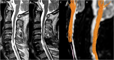 A Phase III Clinical Trial Showing Limited Efficacy of Autologous Mesenchymal Stem Cell Therapy for Spinal Cord Injury