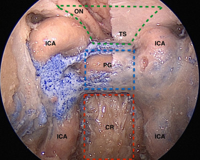 Full endoscopic endonasal transsellar-transclival approach- the modularity concept