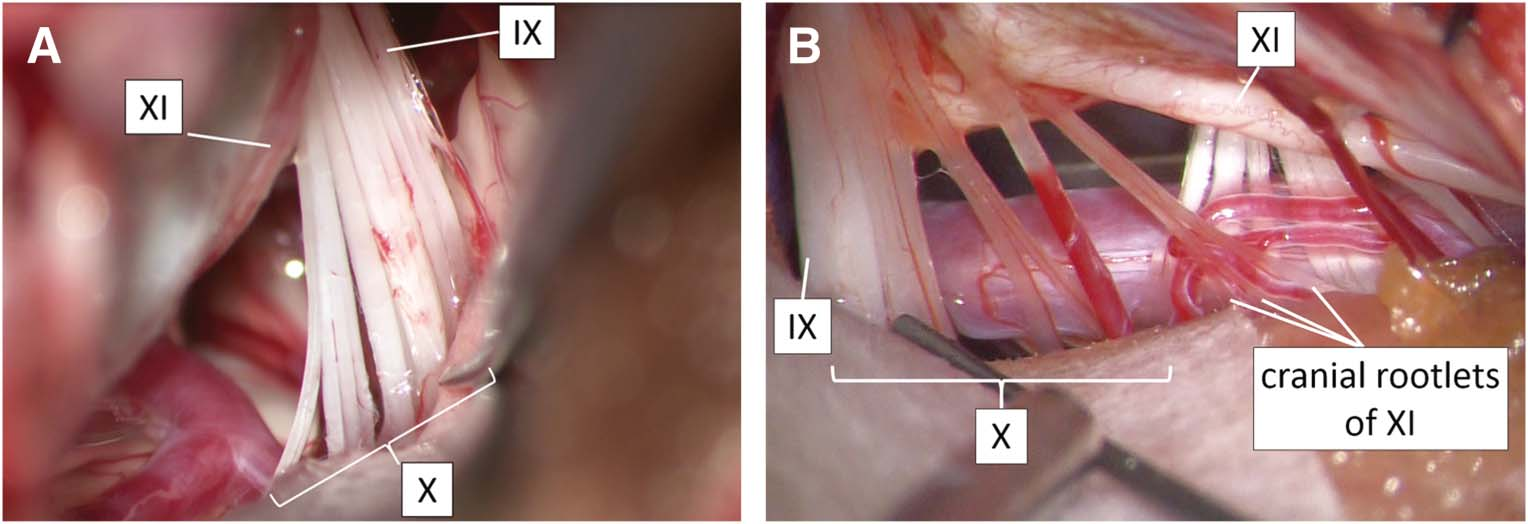 Intraoperative Mapping and Monitoring for Rootlets of the Lower Cranial Nerves Related to Vocal Cord Movement