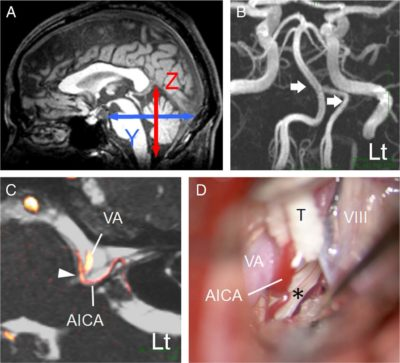 Flatness of the infratentorial space associated with hemifacial spasm