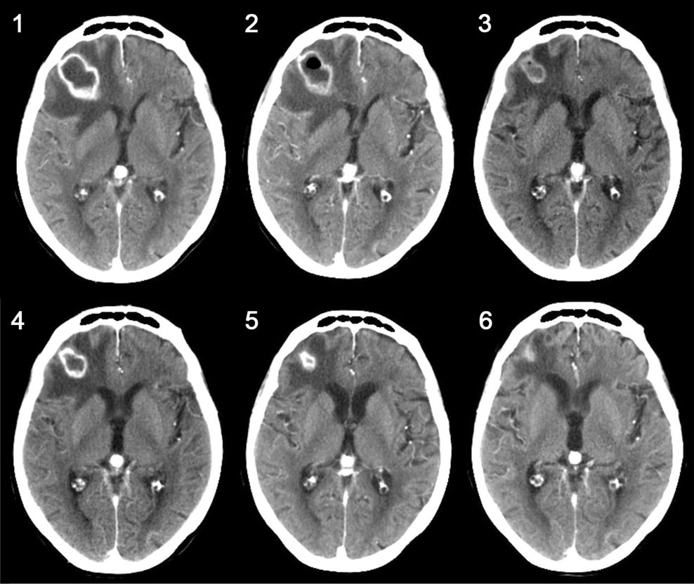 Hyperbaric oxygen therapy in spontaneous brain abscess patients