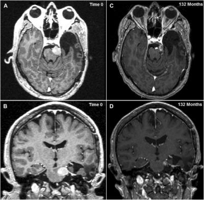 Long-Term Results of Stereotactic Radiosurgery for Skull Base Meningiomas