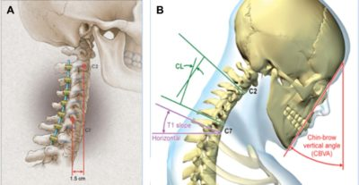 prospective-multicenter-assessment-of-early-complication-rates-associated-with-adult-cervical-deformity-surgery-in-78-patients
